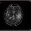 MedINRIA x64 1.9.0 full screenshot