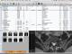 OsiriX 7.0.2 full screenshot