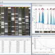 GelAnalyzer 2010a full screenshot