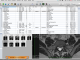 OsiriX 7.0.2 full screenshot